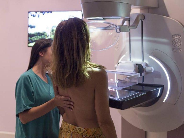 """Безплатни консултации за рак на гърдата и мамографии в ДКЦ """"Св. Георги"""""""